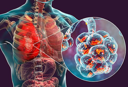WHAT ARE THE 4 STAGES OF PNEUMONIA?